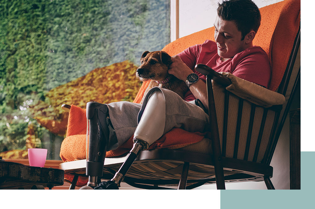 Young man with prosthetic legs sitting with dog on his lap